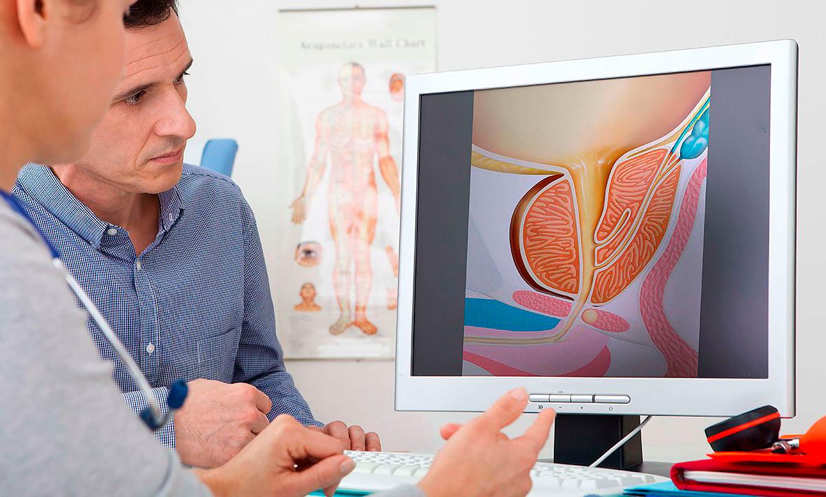 Диагностика простатита урологами профилактика простатита и аденомы простата